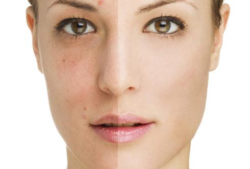 Неровный тон кожи: советы и домашние средства