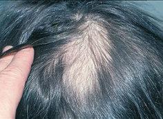 Очаговая алопеция у женщин: причины и лечение