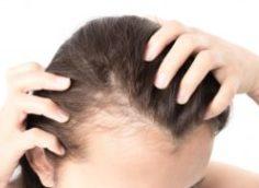 Средство от выпадения волос у женщин: в домашних условиях и аптечные