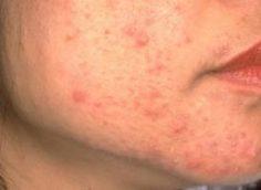 Сыпь на лице: причины и лечение народными средствами