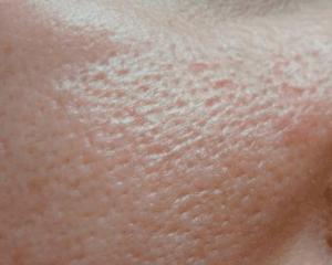 Типы кожи лица: характеристика и уход в зависимости от вида