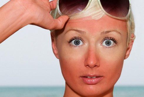 Солнечные повреждения кожи: типы, признаки и возможное лечение.