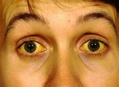 Желтоватая кожа: причины и можно ли это лечить?