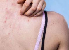 Что такое кето-сыпь – причины, и как ее лечить?