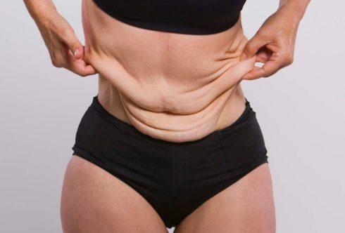 Как подтянуть кожу после похудения.