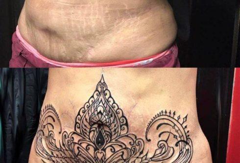 Татуировки на растяжках: можно ли скрыть растяжки татуировкой?
