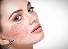 Почему лопаются капилляры на лице и как это лечить?