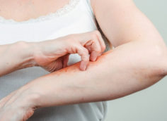 Что такое Псориаз-причины, симптомы, типы и домашние средства лечения псориаза