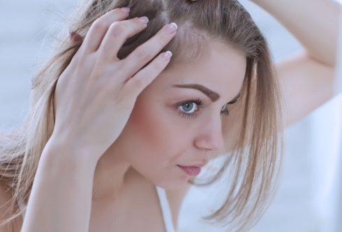 Редеющие волосы: что вам нужно знать об истончении волос