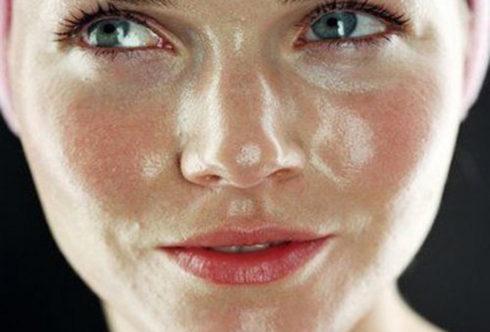 Жирная кожа-причины, профилактика, лечение