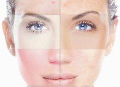 Как определить какой у тебя тип кожи?