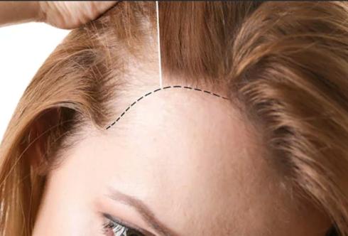 Побочные эффекты пересадки волос.